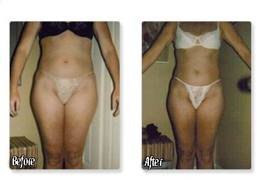 Body sculpting results